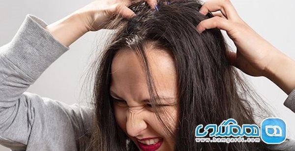 5 روش خانگی و در دسترس برای درمان فوری و ساده شپش سر